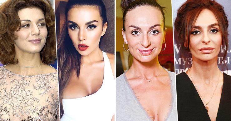 Светлана иванова до и после ринопластики