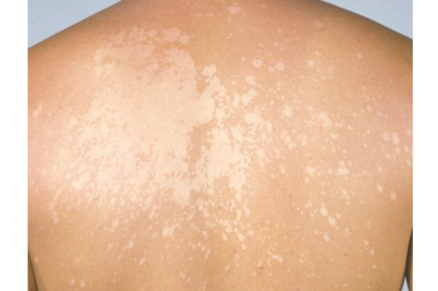 TINEA VERSICOLOR (FUNGAL INFECTION OF SKIN)