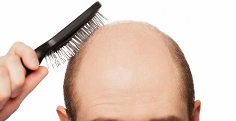 ALOPECIA  (HAIRFALL, HAIR LOSS)