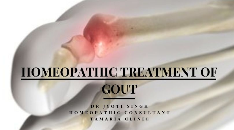 Homeopathic treatment of gout!!