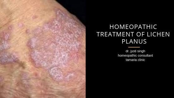 HOMEOPATHIC TREATMENT OF LICHEN PLANUS