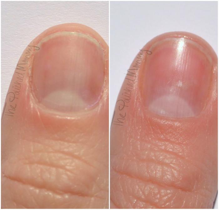 Hum killer nails