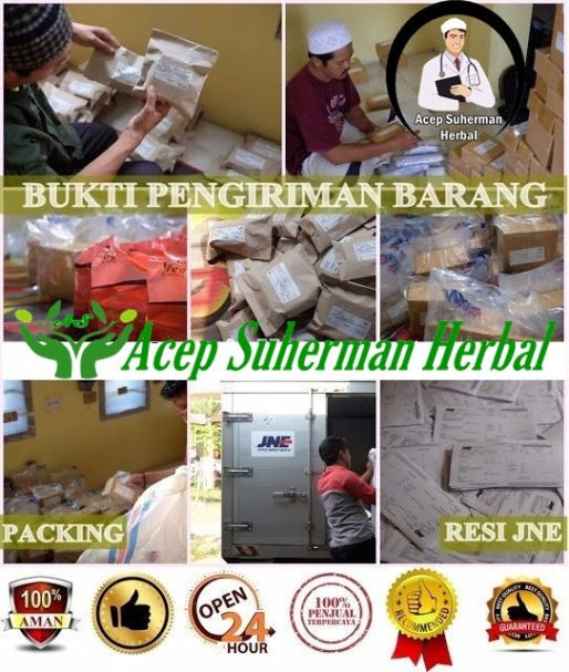 pengobatan alternatif batu empedu
