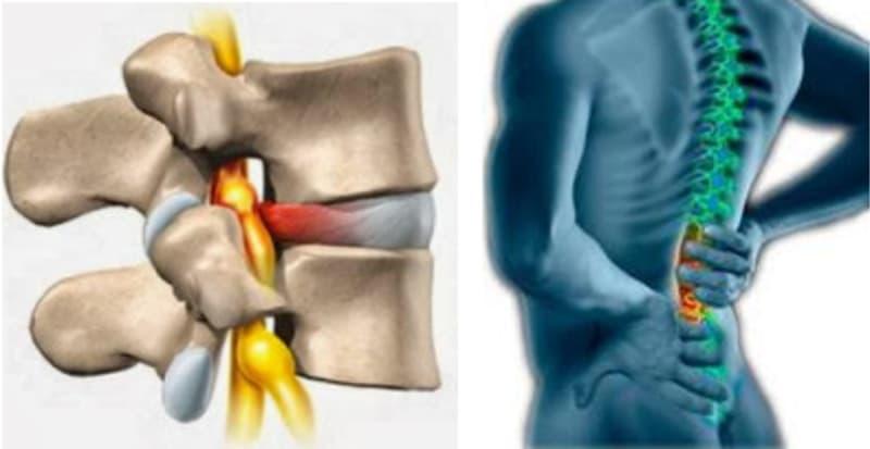 Obat Syaraf Terjepit Di Tulang Belakang