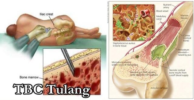 Cara Mengobati Tbc Tulang Secara Alami