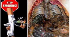 obat pembersih paru paru di apotik
