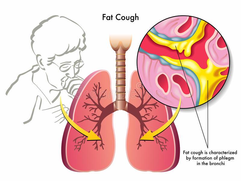 obat batuk di apotik