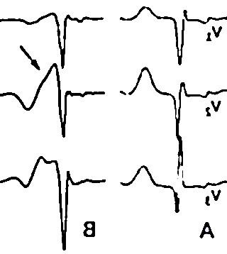syndrome brugada 1