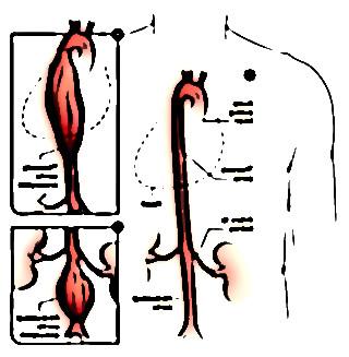 symptomes aorte abdominale 10557