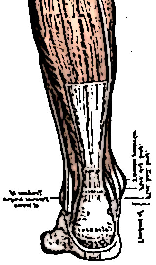 tendon dachille 1