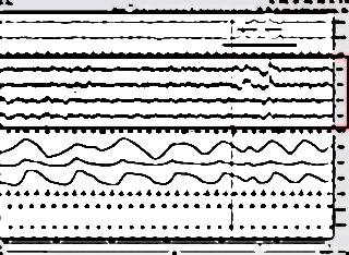 Narcolepsie 31221