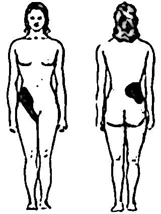 colique nephretique 1