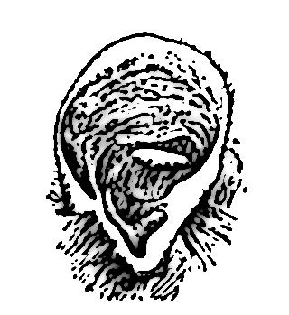 tragus 17104