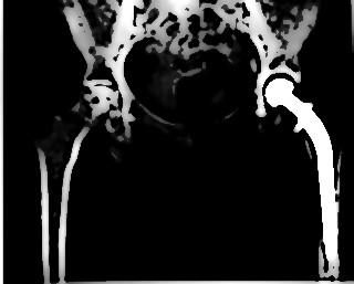 Prothese de hanche 1305