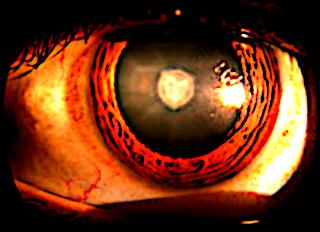 cataracte 1