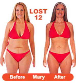 Before And After Hydroxycut Max For Women | Dark Brown Hairs