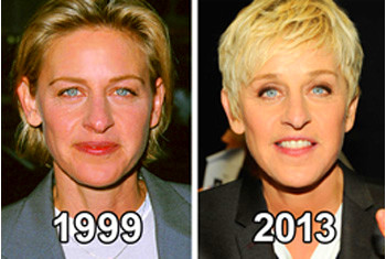 You've probably seen the before and after picture of Ellen Degeneres ...
