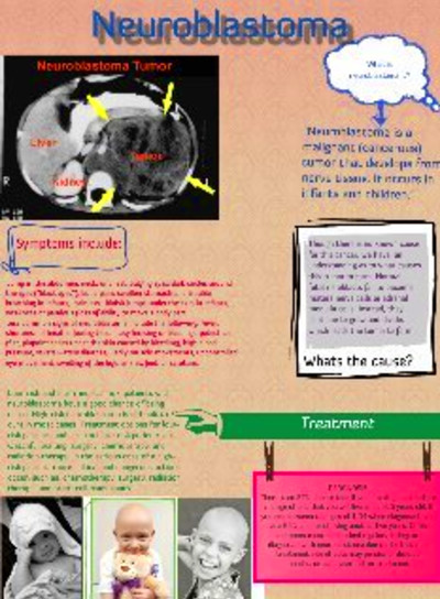 Neuroblastoma: text, images, music, video | Glogster EDU - 21st ...