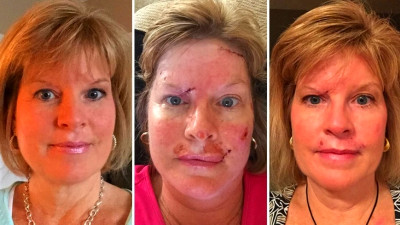Woman shares skin cancer photos to show effects of tanning habit | Fox ...