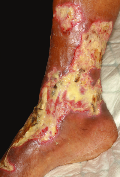 Sodium Thiosulfate as First-Line Treatment for Calciphylaxis | JAMA ...