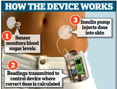 """Bionic"" pancreas passes initial tests 