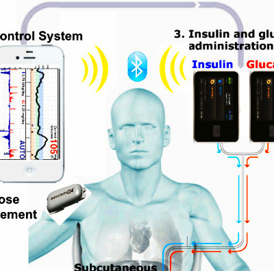 The bionic pancreas can be controlled via iPhone and release the ...