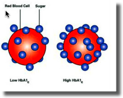 Hemoglobin A1c :: Dave Montgomery MD Official Website