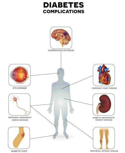 6 Dangerous Diabetes Complications to Look Out For - Diabetics Weekly