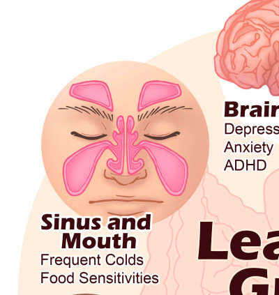 Heal Leaky Gut Syndrome & Autoimmune Disease - Dr. Axe