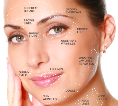 Botox Injections For Lakeland, Mulberry, Bartow, Winter Haven ...