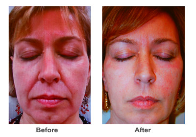 Fillers - Juvederm Voluma and Ultra Plus | Dermatology Specialists of ...