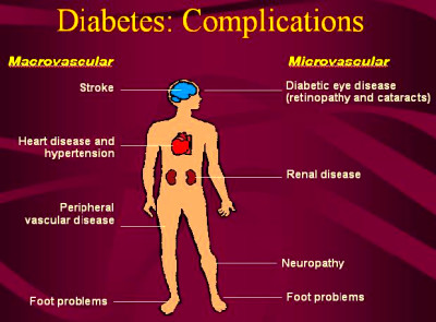 Diabetes complications. Causes, symptoms, treatment Diabetes ...