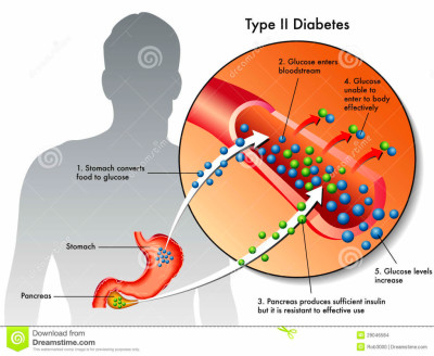 Can you Prevent Childhood Type 2 Diabetes? | Health Life Media