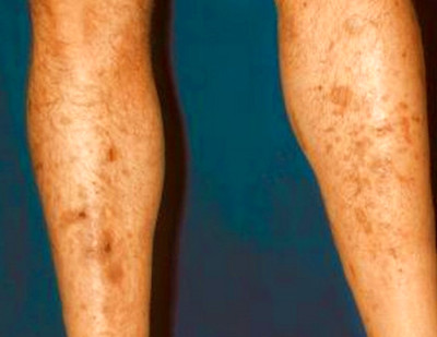 Diabetic Dermopathy On Legs Pictures to Pin on Pinterest ...