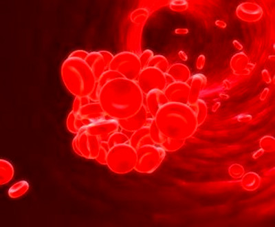 6 Blood Clotting Disorders You Should Know About - Health Watch Center