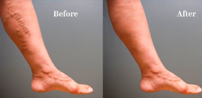 How to Get Rid of Varicose Veins : Human N Health
