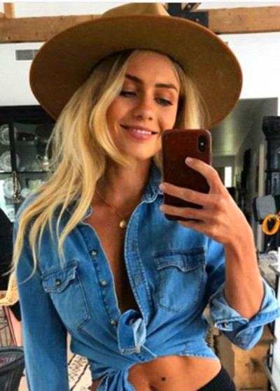 The Block's Elyse Knowles reveals struggle with bad skin ...