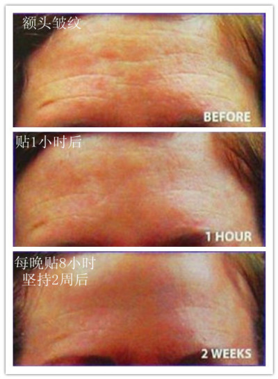 antiarrugas antiarrugas parches Forehead remedio enmascaran Wrinkle ...