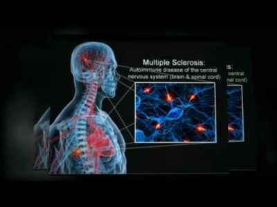 Protandim- Scientific review multiple sclerosis - YouTube