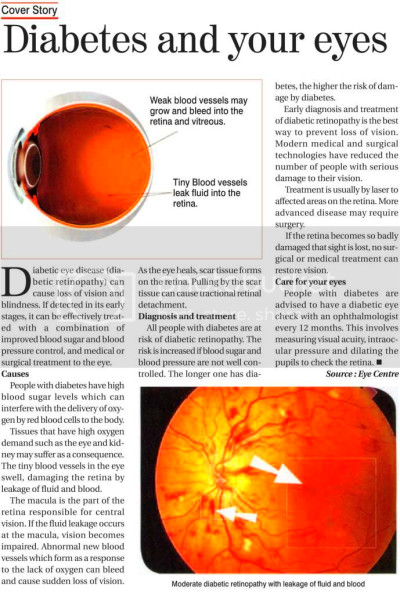 Bangladesh Newspaper Advertisements: Diabetes And Your Eyes Health Corner