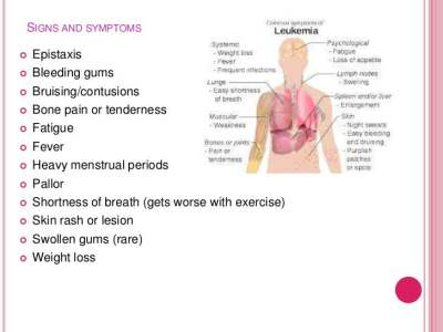 Aml symptoms in younger adults # pocugyko.web.fc2.com