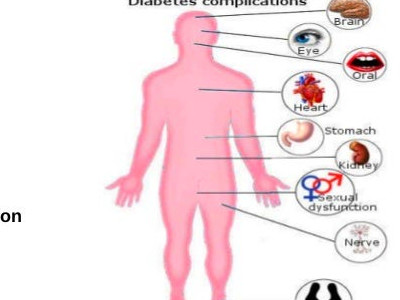 Diabetes and Oral Health Problems | Diabetes and Dental Health
