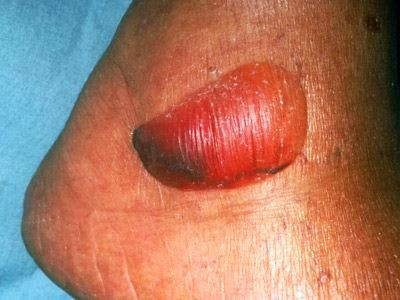 10 Diabetic Skin Conditions: Rash, Sores & Blisters | Everyday Health