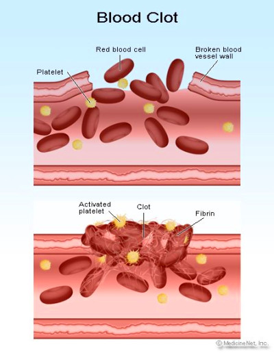 Picture of blood clotting
