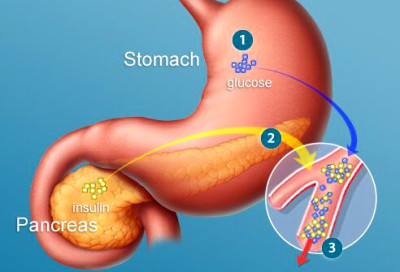 type2diabetes-s2-stomach-and-pancreas.jpg