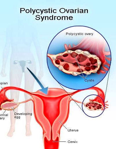 polycystic ovarian | Diabetes Inc.