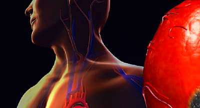 Heart Attack Pictures: Anatomy Diagrams, Symptoms, and ...