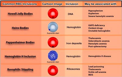 Variations in Red Blood Cell Morphology : Size, Shape, Color and Inclusion Bodies ...