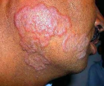 Ringworm is contagious. It can be passed from one person to person. Or ...