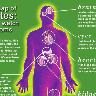 diabetes complication | Mom of type 1 diabetic | Pinterest